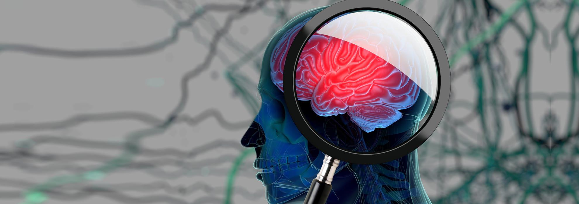 3D image of a person with a magnifying glass exposing the brain and strands in the background.
